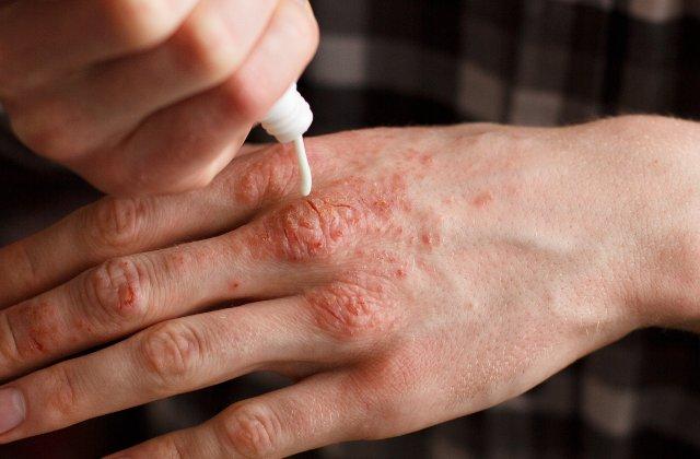 Un nou medicament pentru tratarea psoriazisului va fi scos pe piata