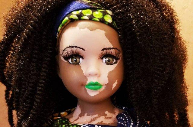 Au aparut papusile cu vitiligo pentru copiii care sufera de aceasta boala