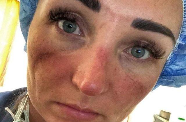 Așa arată fața unui medic care luptă în prima linie cu noul coronavirus