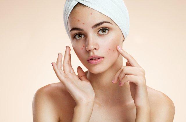 7 greșeli de îngrijire a pielii care favorizează apariția acneei