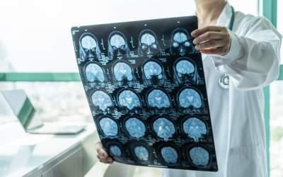 Accidente vasculare cerebrale...