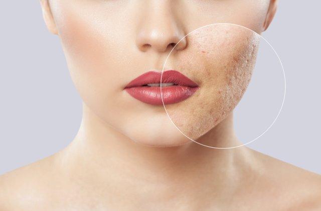 Ai grijă de tenul tău! 3 tratamente naturale care te scapă de petele de pe faţă