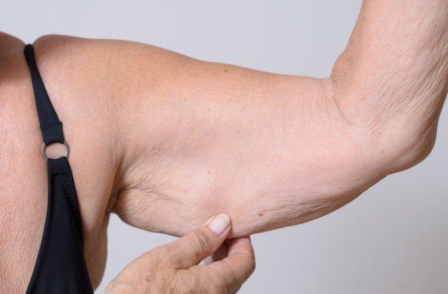 Ai grijă de aspectul tău! 4 moduri prin care poți elimina pielea lăsată după ce ai slăbit