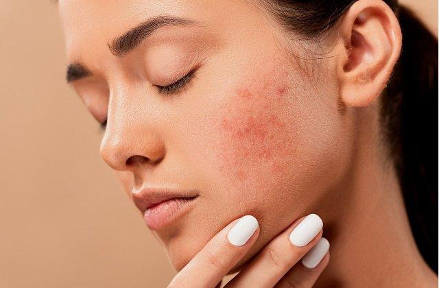 Apa foarte rece și mâncarea procesată: 4 obiceiuri care îți distrug pielea