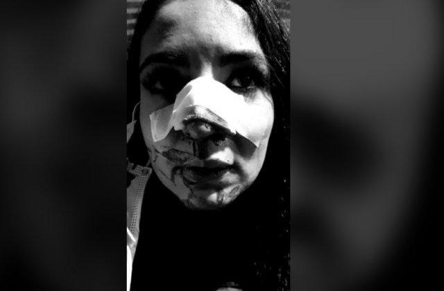 """FOTO Cristina Joia, prima apariție după operațiile suferite în urma agresiunii: """"Am decis să-mi asum nasul ăsta brăzdat"""""""